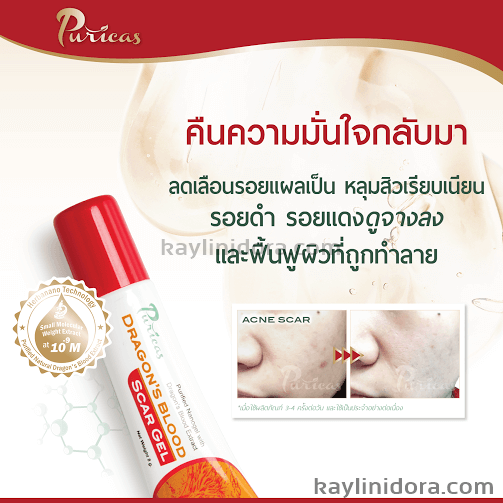Dragon Blood Anti Acne